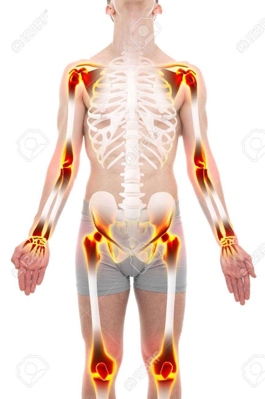 Arthritis Joints Pain Anatomy Male Concept Stock Photo, Picture And ...