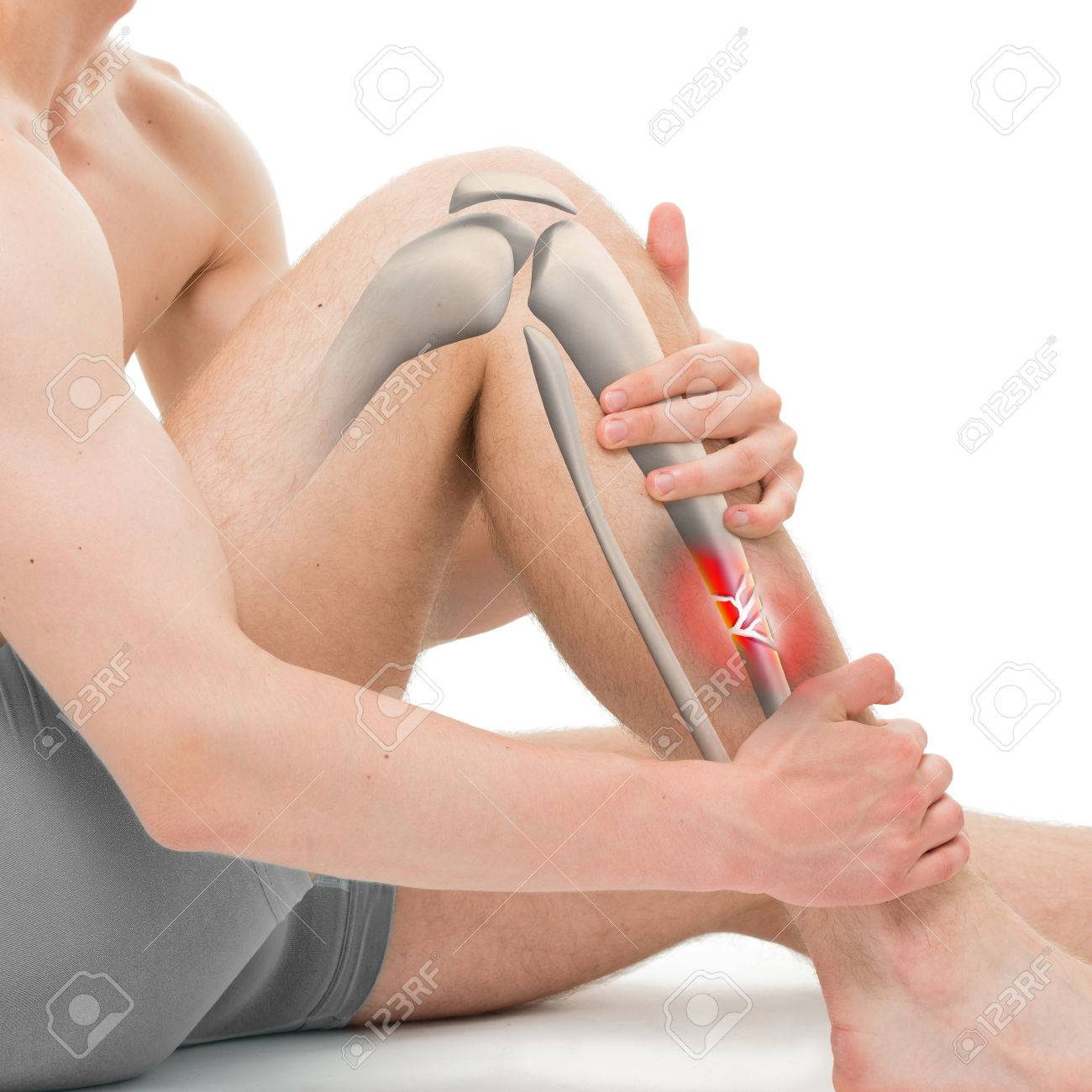 Comminuted Fracture Of The Tibia Leg Fracture 3d Illustration