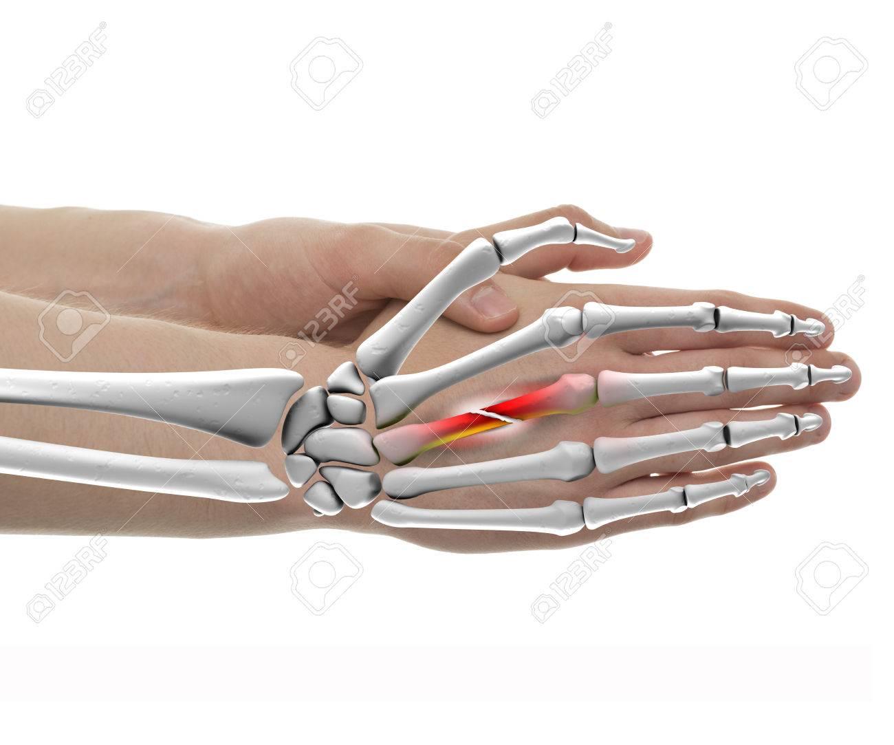 Hand Gebrochenen Knochen Male - Studioaufnahme Mit 3D-Darstellung ...