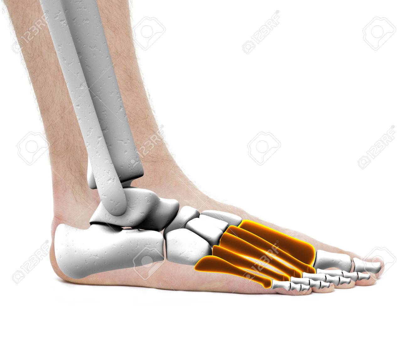 Metatarsal Bones - Anatomy Male - Studio Photo Isolated On White ...