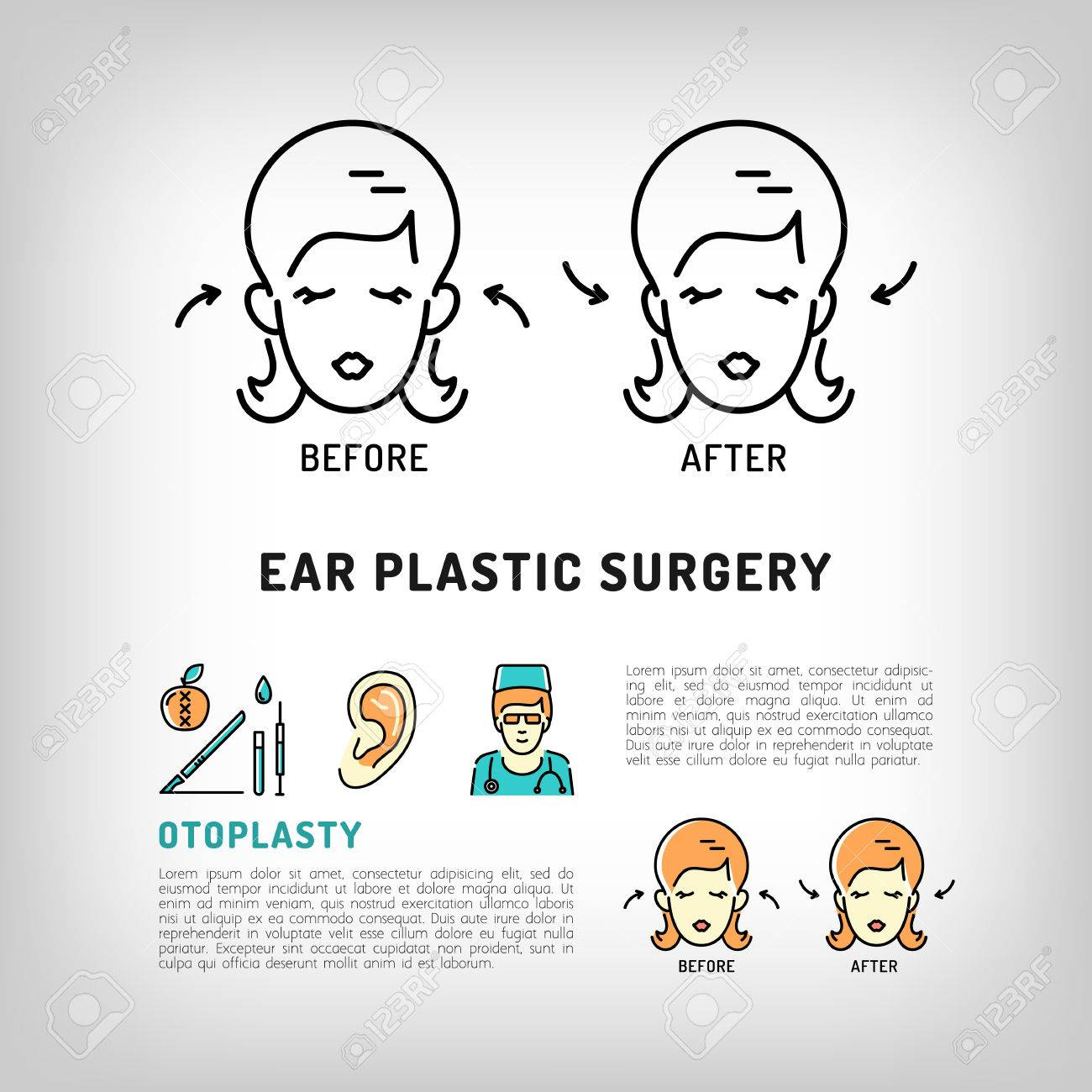 Otoplasty Ear Plastic Surgery. Face Plastic Surgery Concept Thin ...