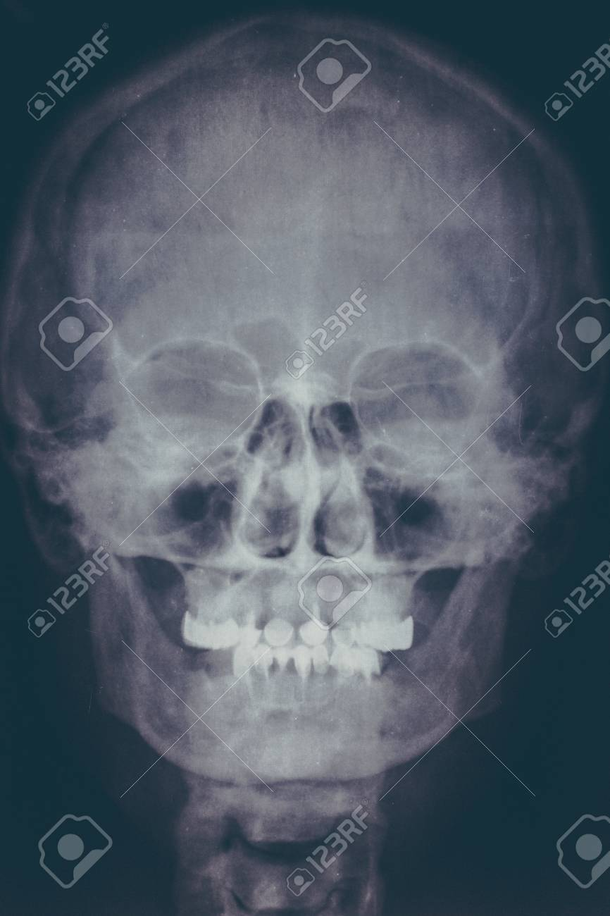 X-ray Image Or Roentgen Of Human Skull, Close-up. Head Xray Scan ...