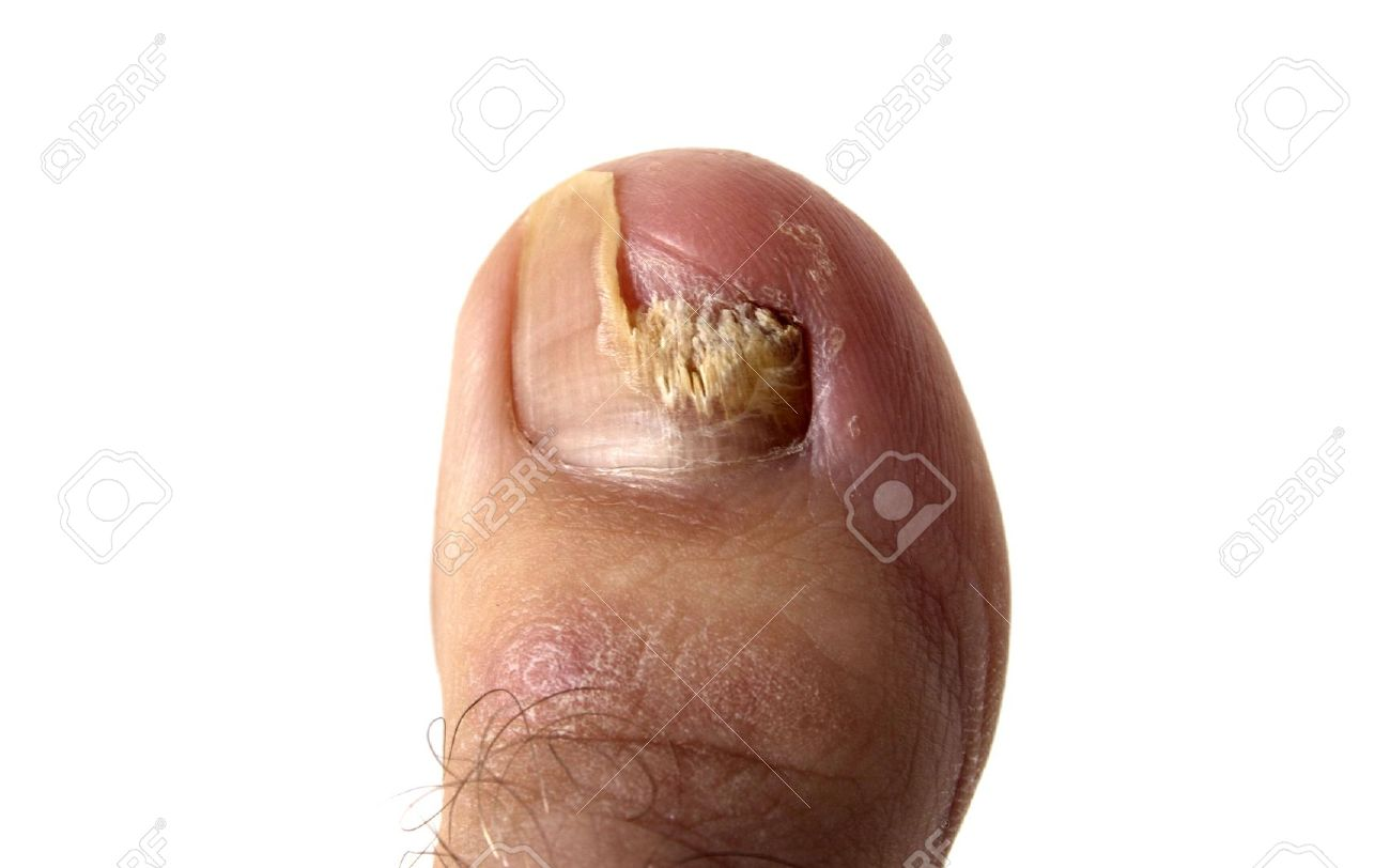 Foot Fungus Images & Stock Pictures. Royalty Free Foot Fungus ...