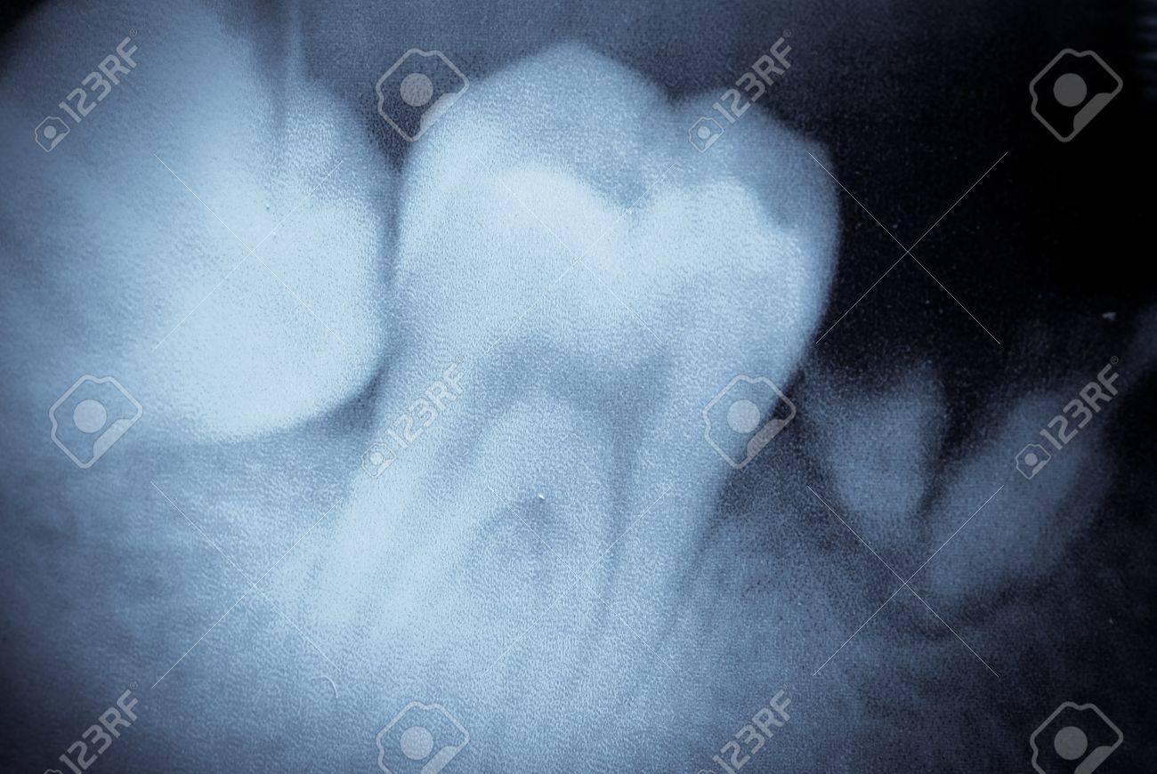 Macro De Película De Rayos X Dental Diente Fotos, Retratos, Imágenes ...