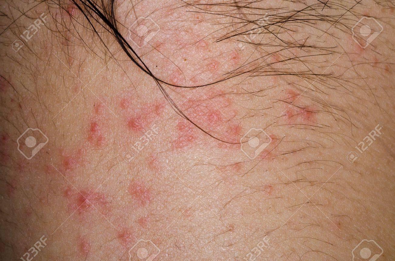 患者の病気のアレルギー性発疹皮...