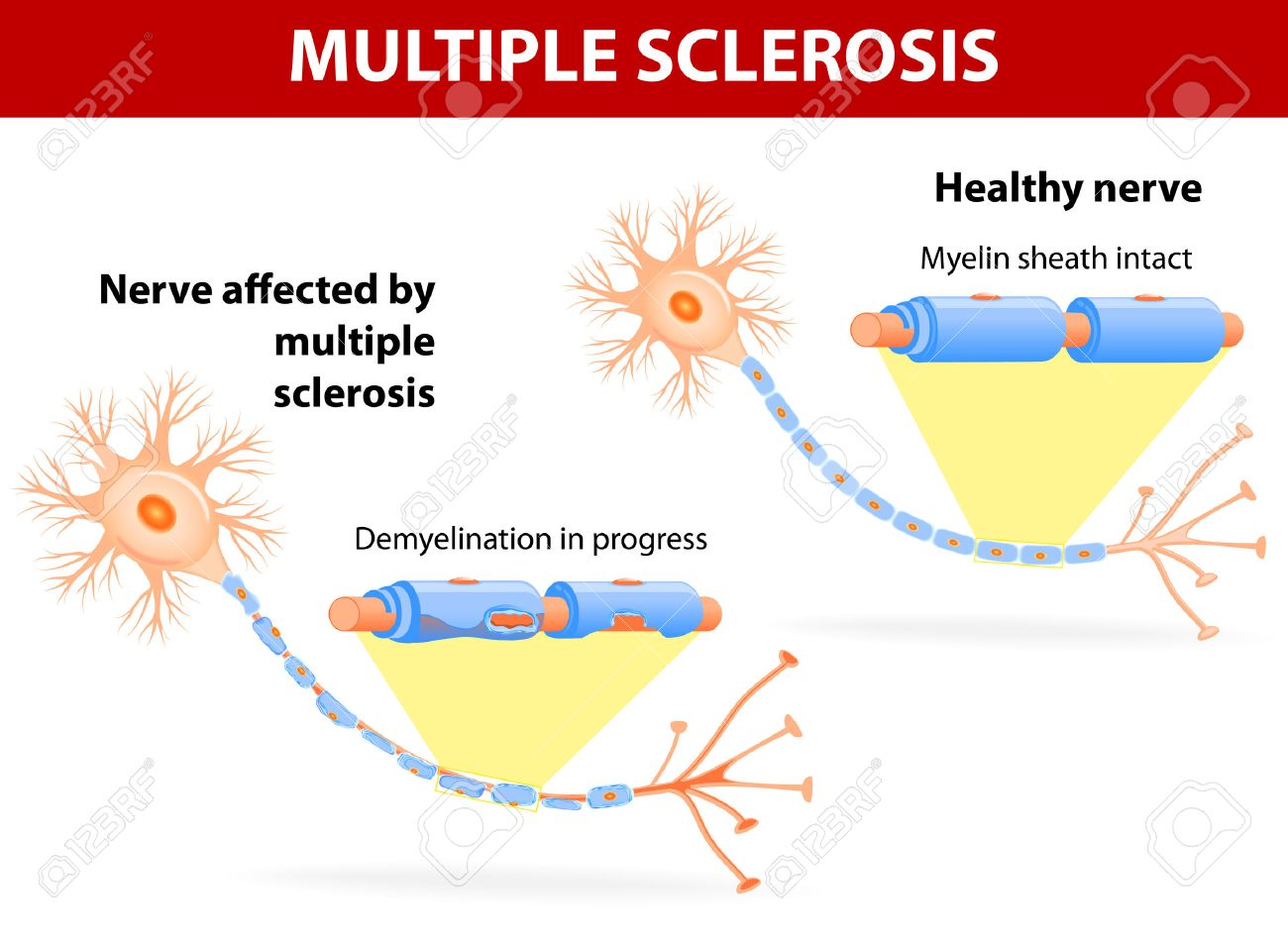 Multiple sclerosis is a specific immune system malfunction which causes damage to healthy nerves, disrupting the flow of nerve signals. - 23684921