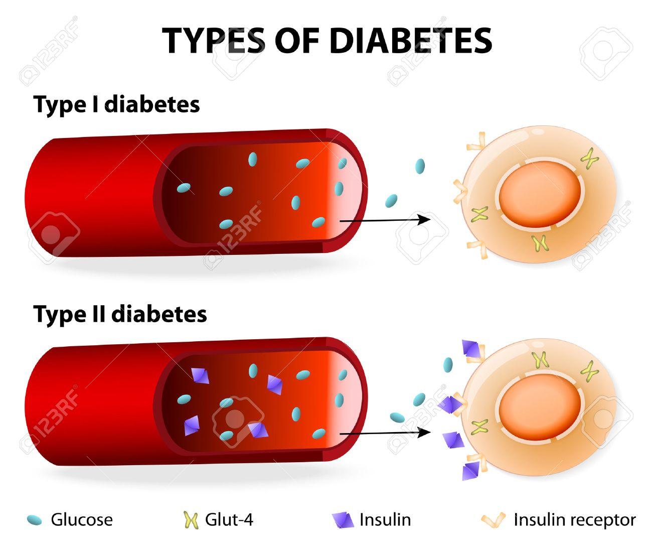 Types De Diabète. Tapez 1 Et Diabète De Type 2. Insulino-dépendant ...