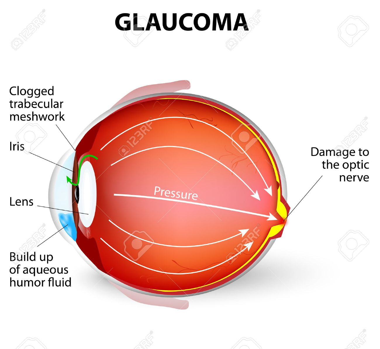 Glaucoma Is An Eye Disease And A Leading Cause Of Blindness The Optic Nerve