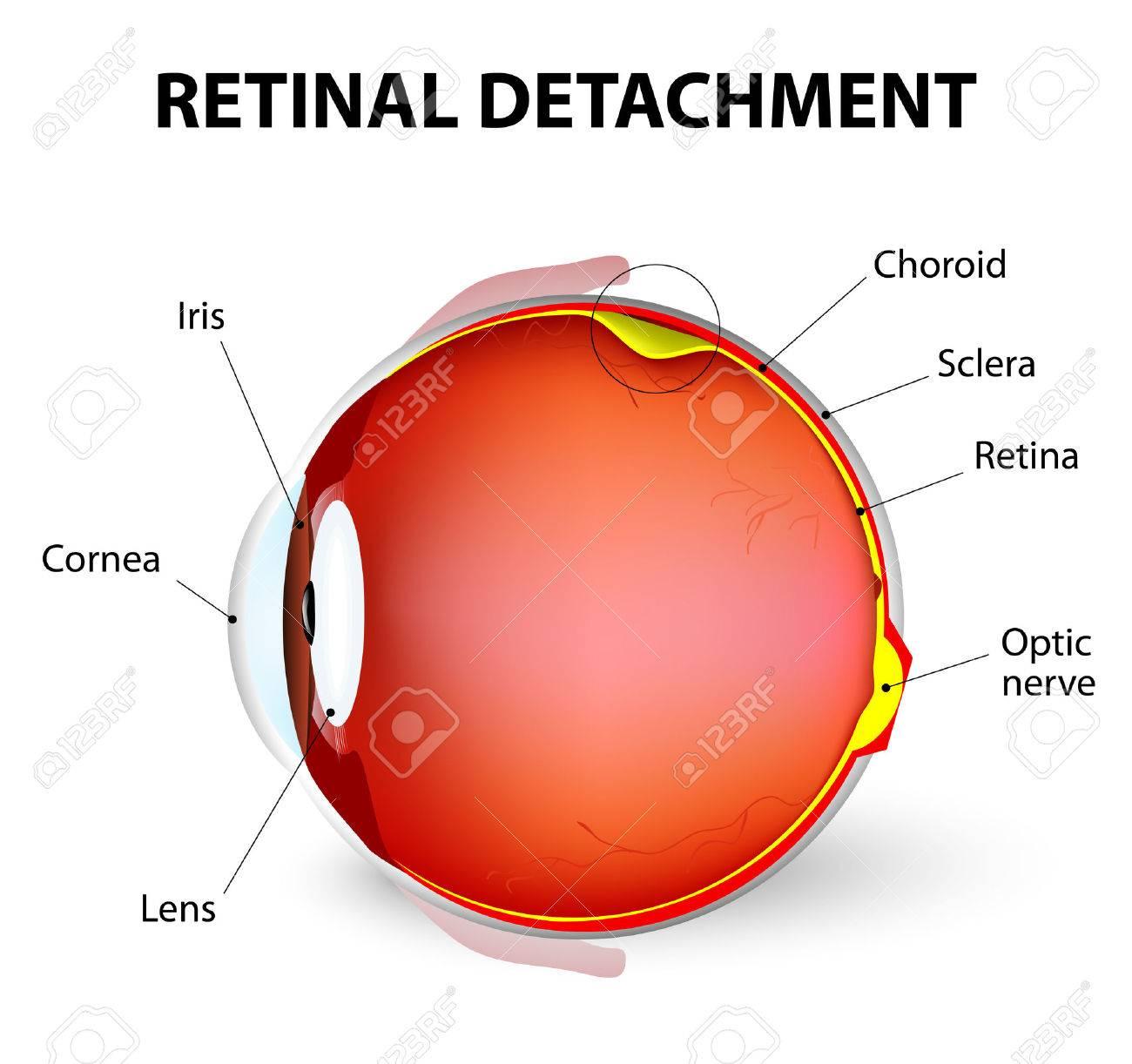Décollement de la rétine est une maladie de l'?il dans lequel la partie  contenant le nerf optique est retiré de sa position habituelle