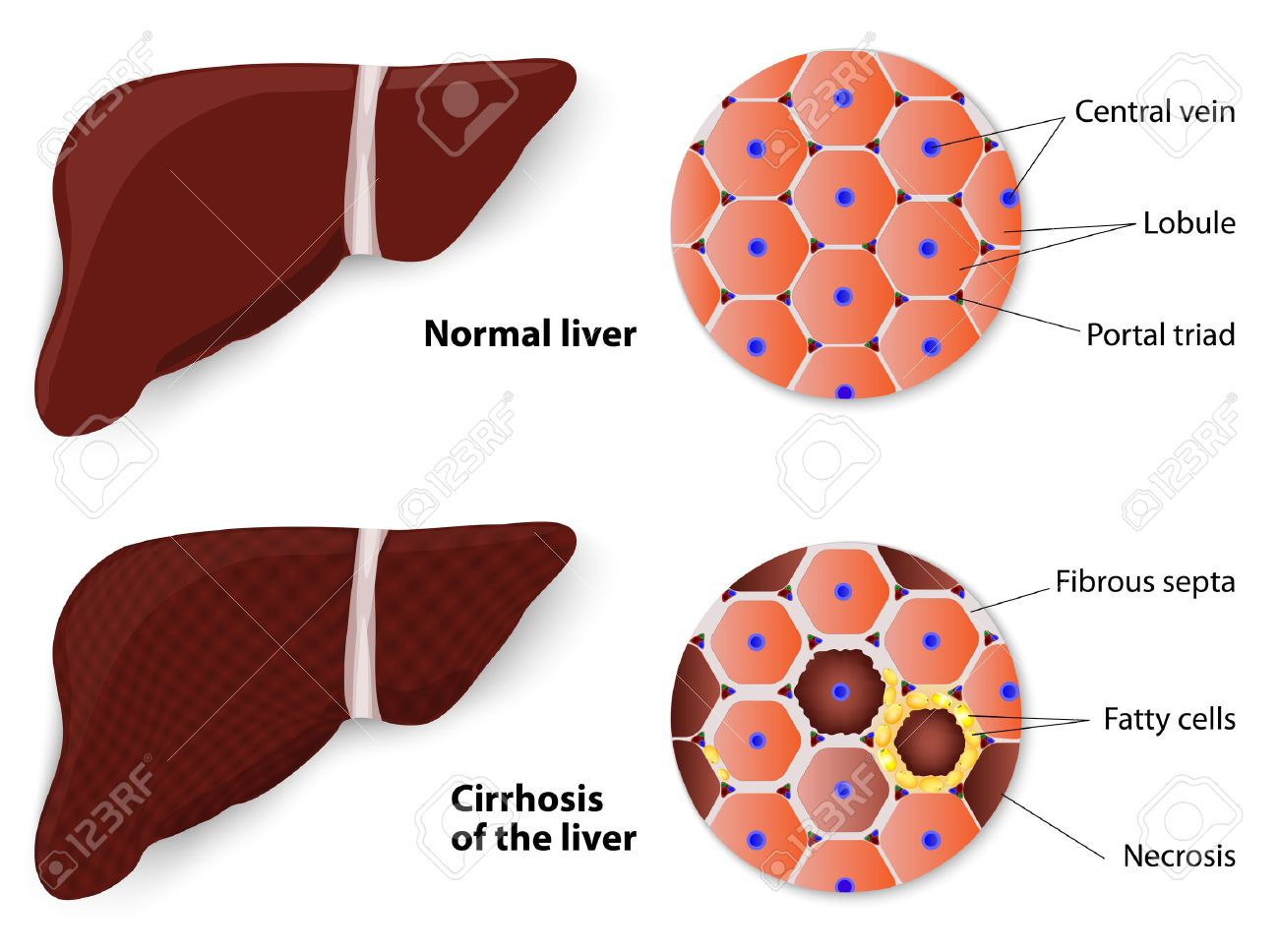 cirrhosis of the liver and normal liver structure of the liver
