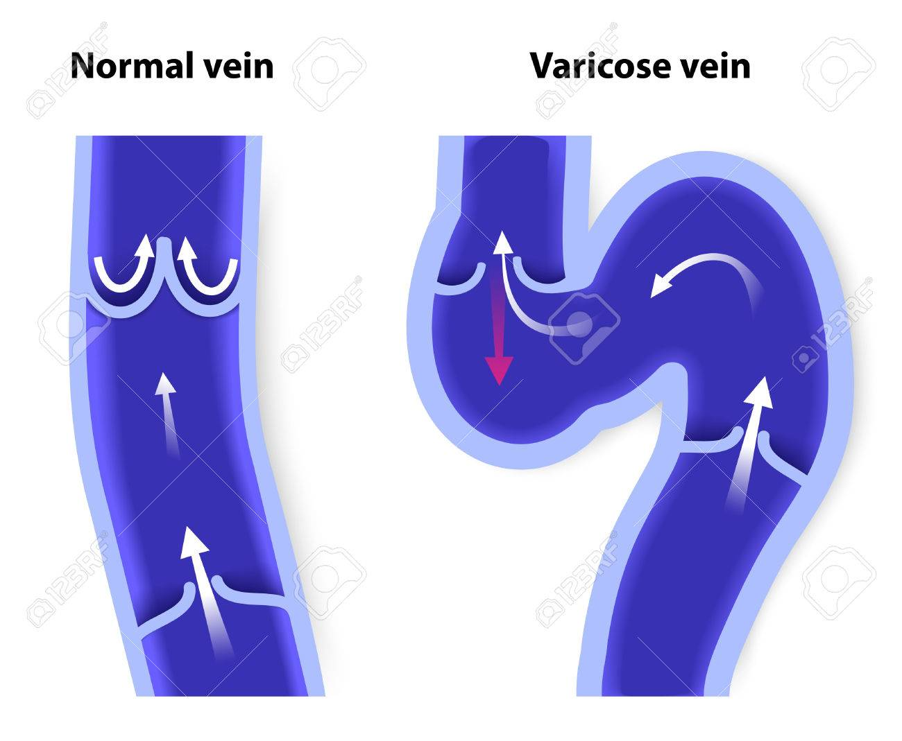 Healthy Vein And Varicose Vein Human Veins Vector Diagram Royalty