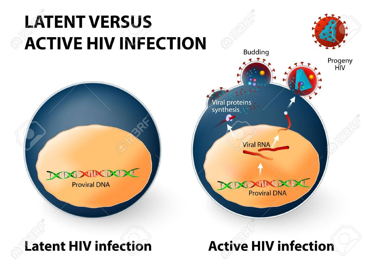 Latent And Active HIV Infection. Royalty Free Cliparts, Vectors, And ...