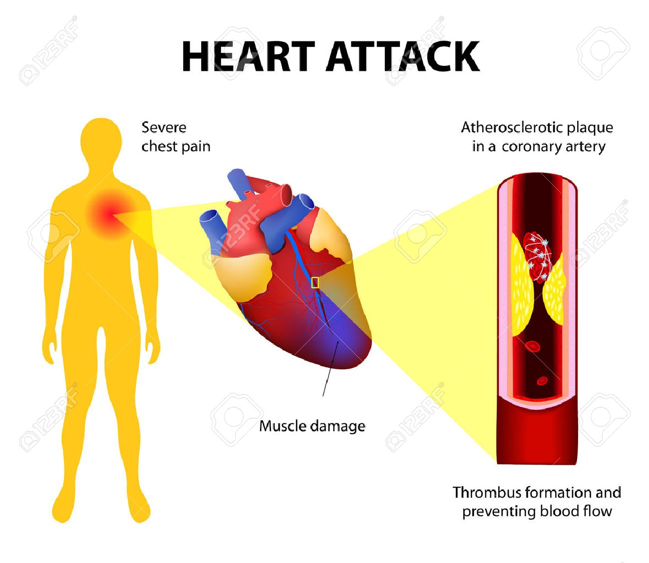 anatomy of a heart attack diagram of a myocardial infarction  : heart attack diagram - findchart.co