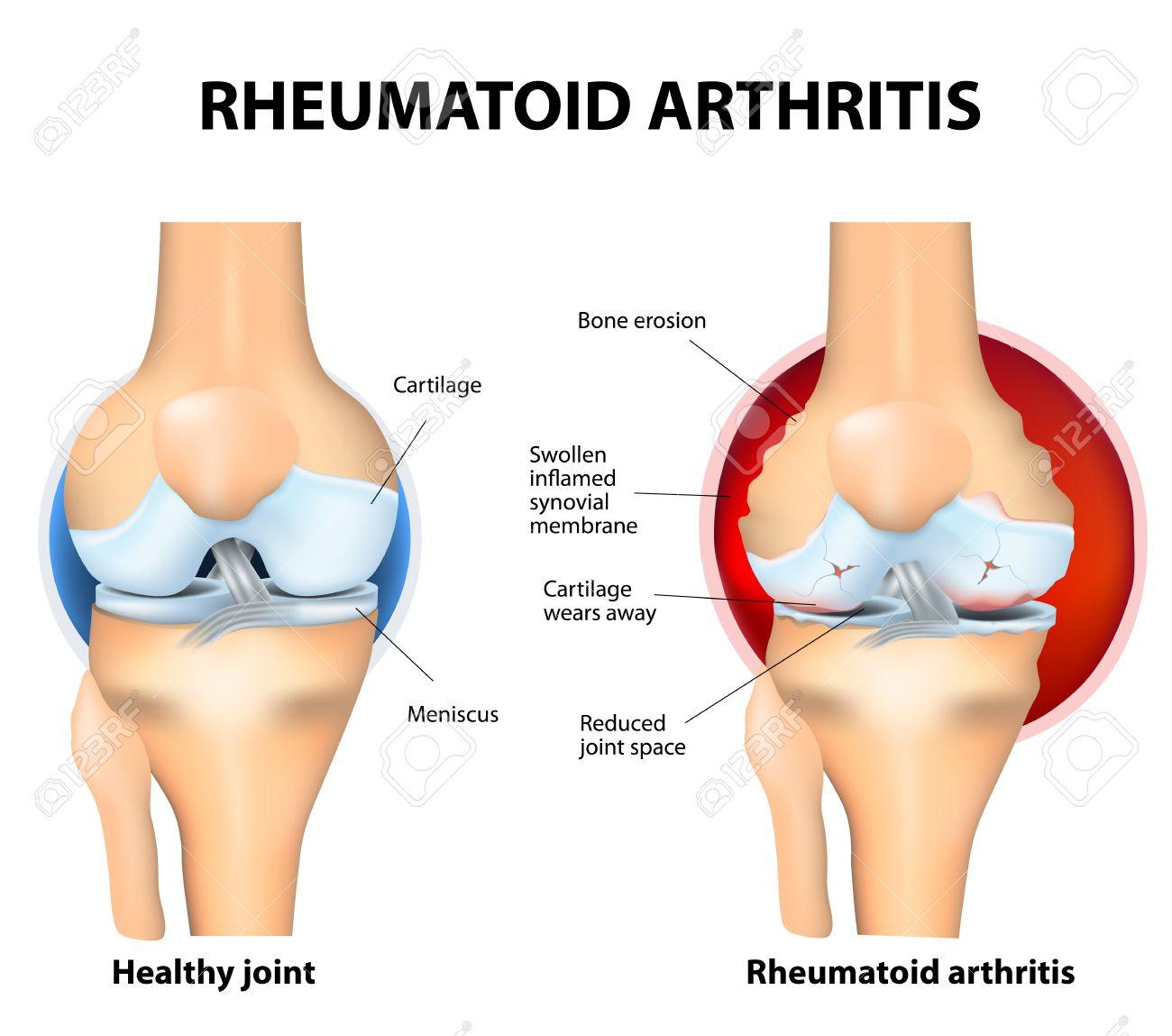 Reumatoïde Artritis (RA) Is Een Inflammatoire Vorm Van Artritis Die ...