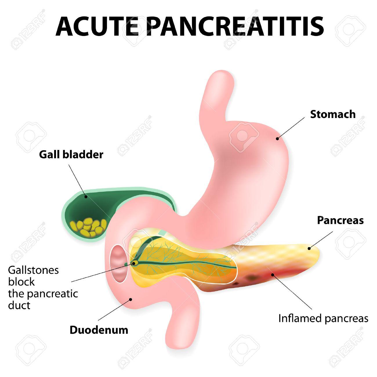 La Pancreatitis Aguda Es Una Inflamación Del Páncreas. Ilustraciones ...