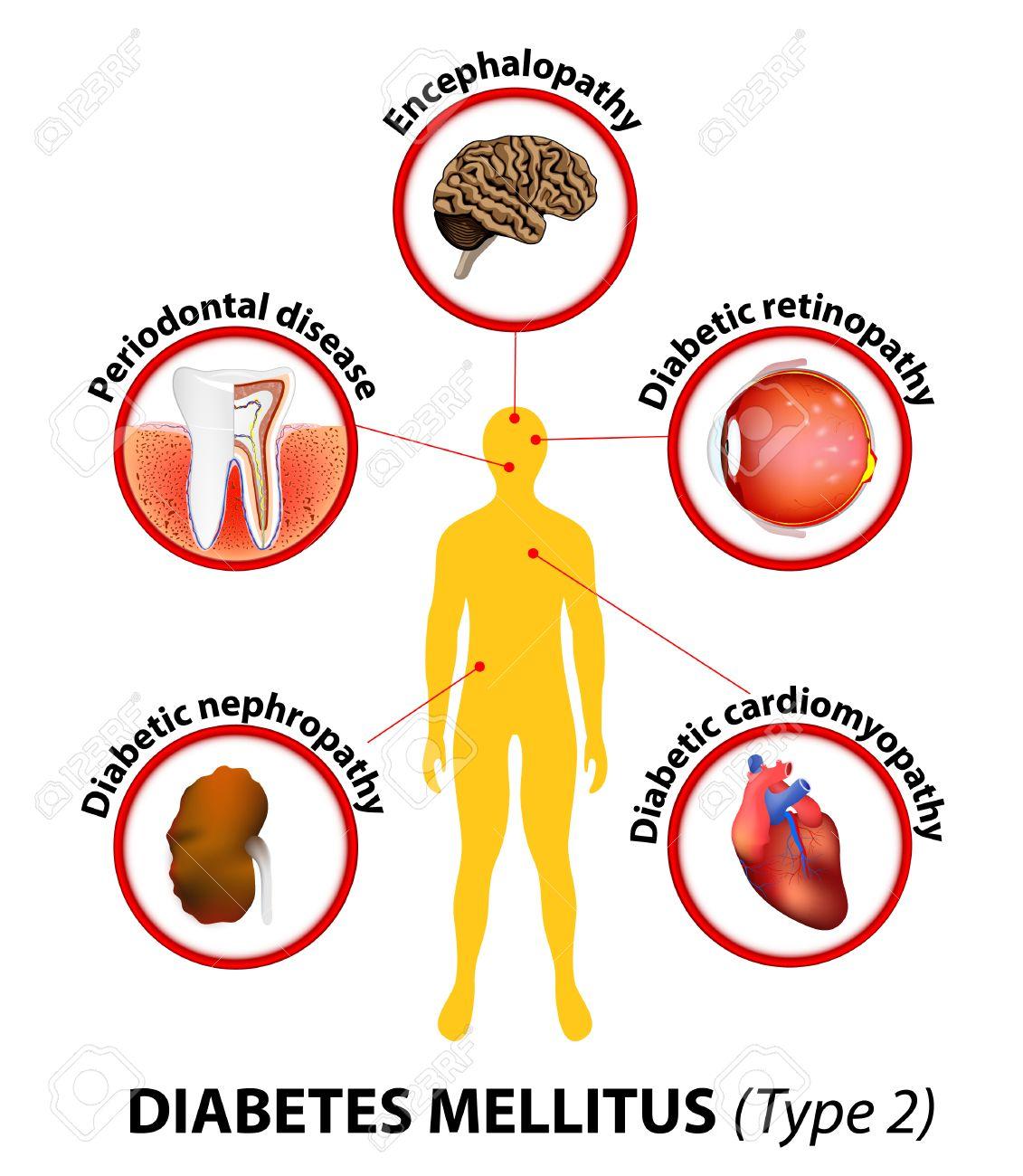 sobre la diabetes mellitus tipo 2