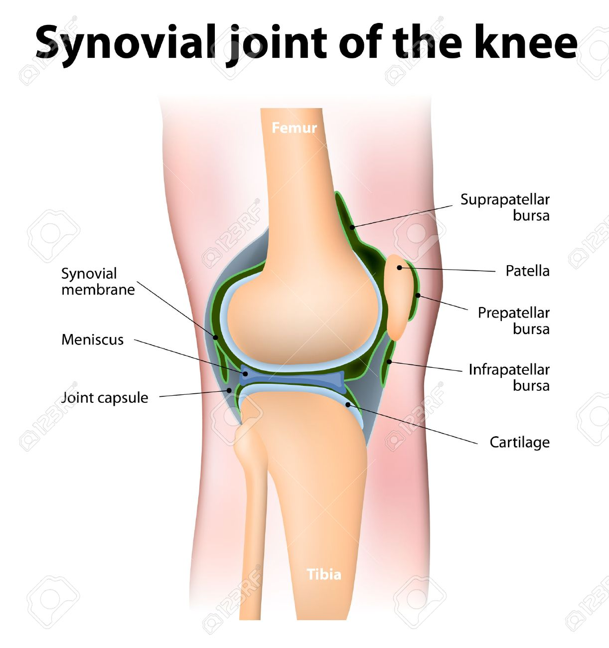 Synovial bursa of the human knee synovial bursa is a sac filled synovial bursa of the human knee synovial bursa is a sac filled with lubricating fluid ccuart Choice Image