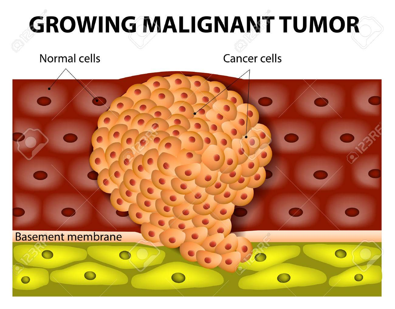 cancer cells in a growing malignant tumor malignant neoplasm