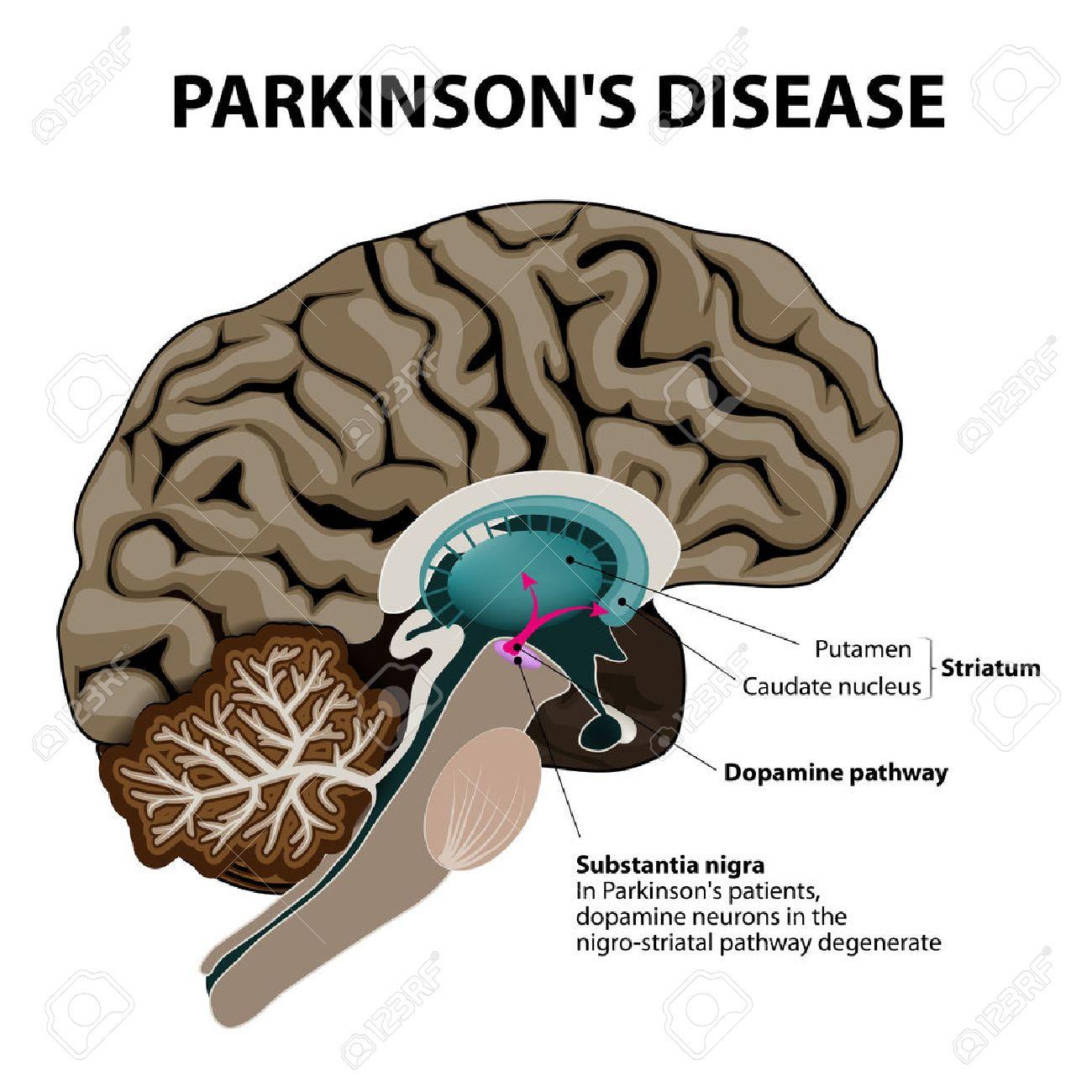 La Enfermedad De Parkinson. Sección Transversal Del Cerebro Humano ...