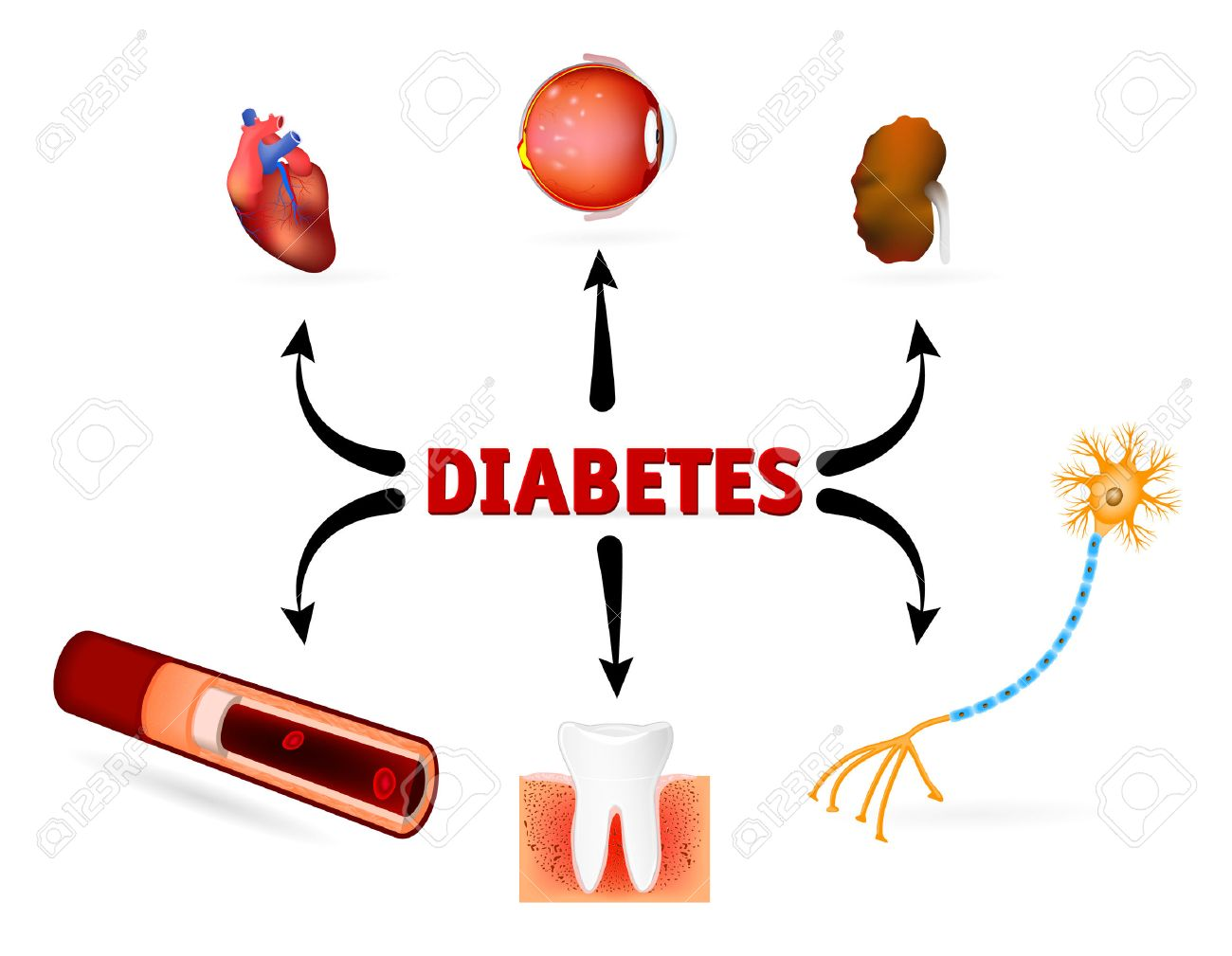 Complications of diabetes mellitus. diabetes complications such as blindness, heart disease, kidney failure, High Blood Pressure and other. - 33134293