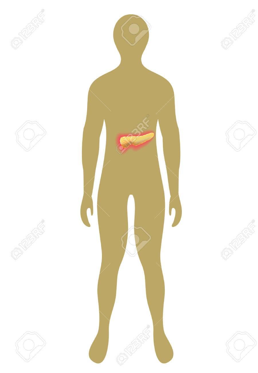 Menschliche Silhouetten-Figuren Mit Inneren Bauchspeicheldrüse ...