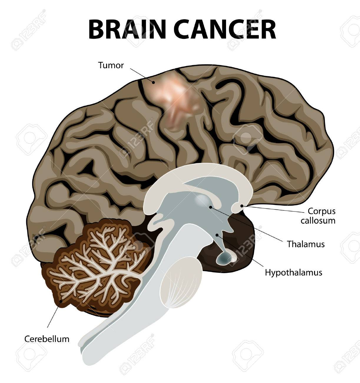 A Brain Tumor Is An Abnormal Growth Of Tissue In The Brain. Human ...