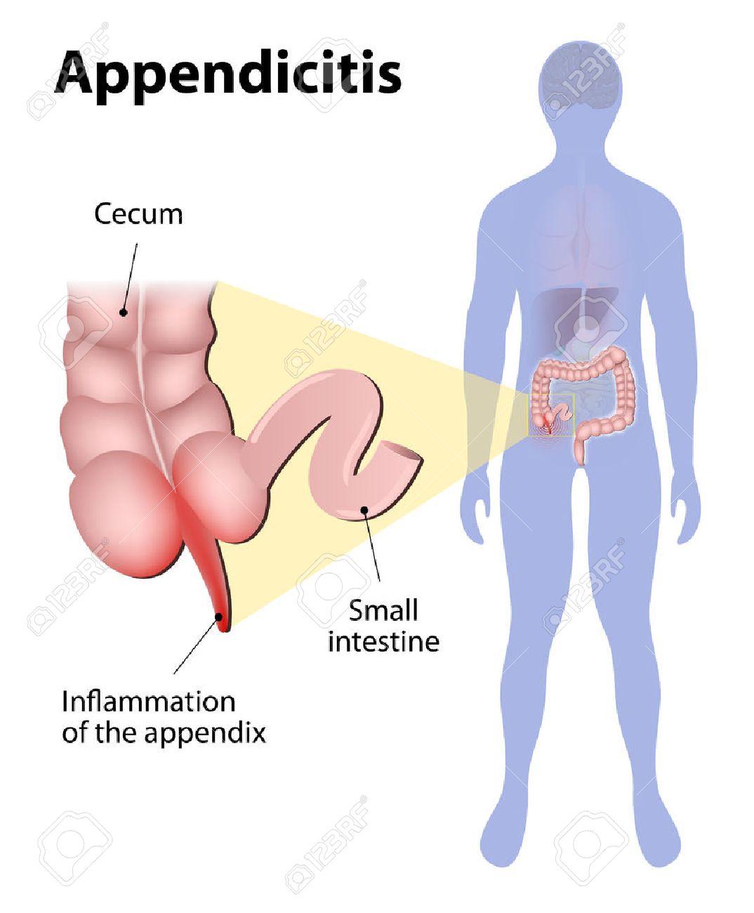 La Apendicitis Es Una Inflamación Del Apéndice. Intestino Grueso Y ...