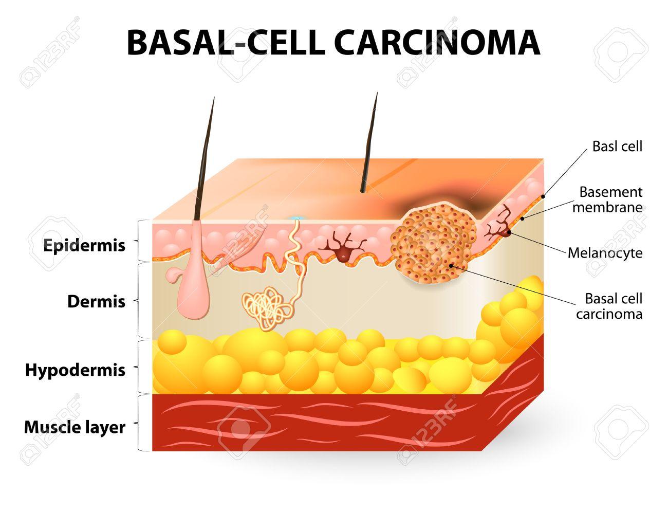 Cáncer De Piel. El Carcinoma De Células Basales O El Cáncer De ...