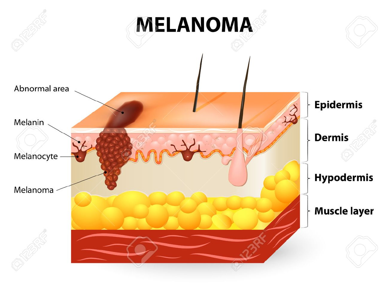 Melanoma Or Skin Cancer This Rare Type Of Skin Cancer Originates