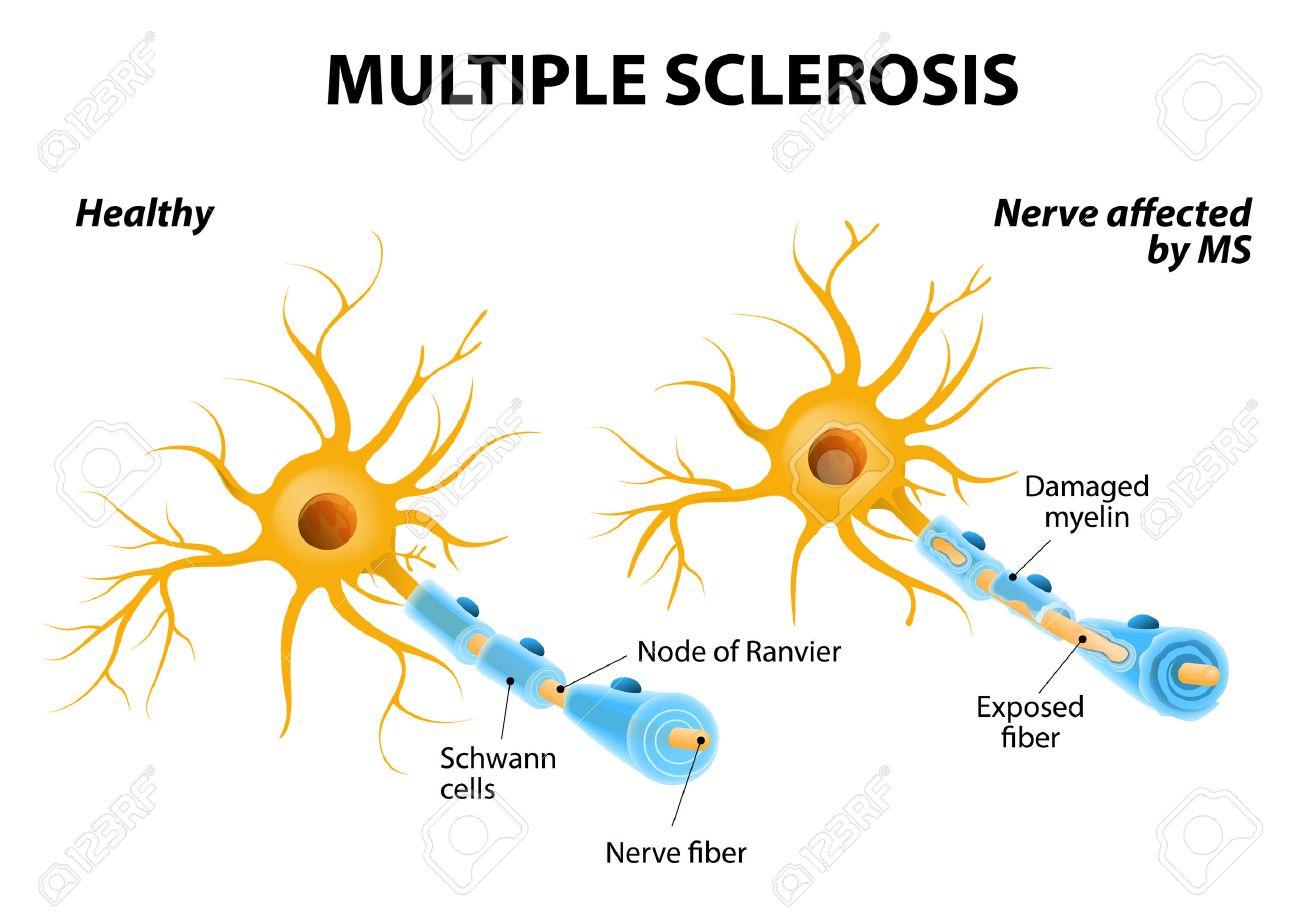 Multiple Sklerose Oder MS. Autoimmunerkrankung. Die Nerven Im Gehirn ...