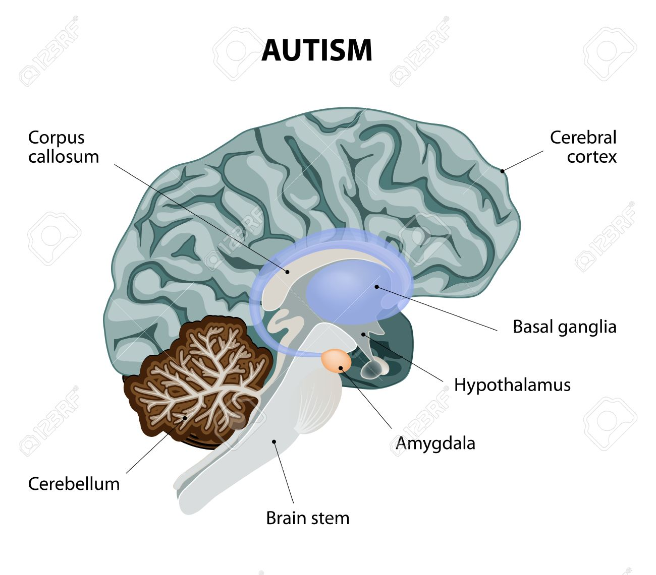 Parts of the brain affected by autism vector diagram royalty free parts of the brain affected by autism vector diagram stock vector 34824339 ccuart Images