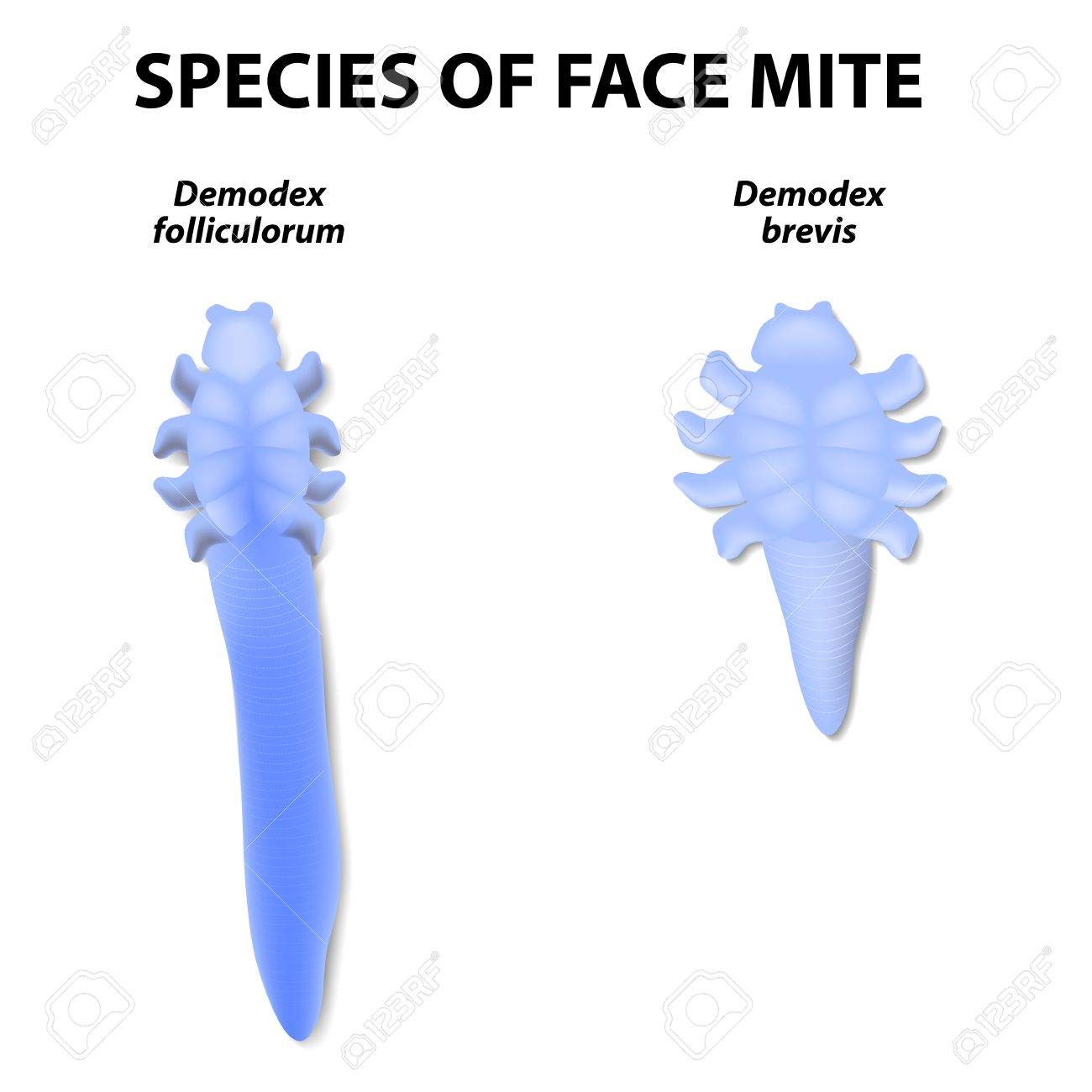 Subcutaneous mite on the face