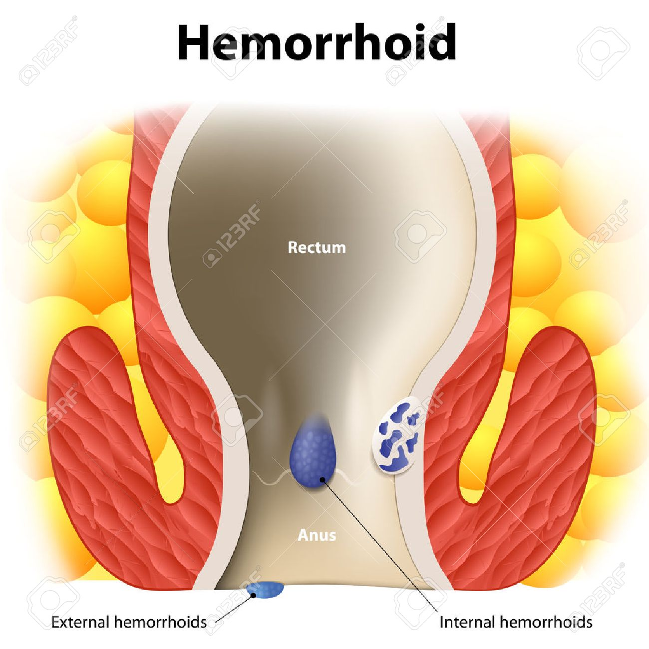 Diagram The Anal Anatomy Internal And External Hemorrhoids