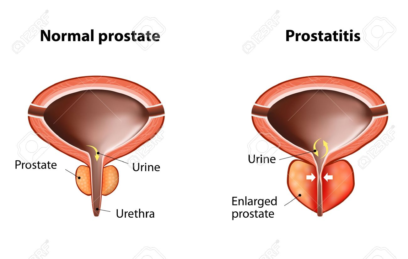 Akut Prostatitis Infertility