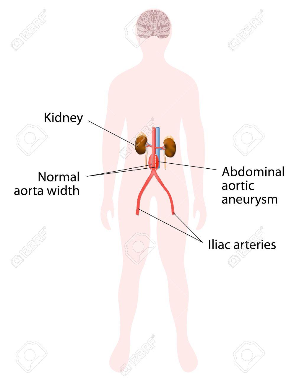 Anévrisme De L'aorte Abdominale. Rein Humain Et L'aorte. Silhouette ...