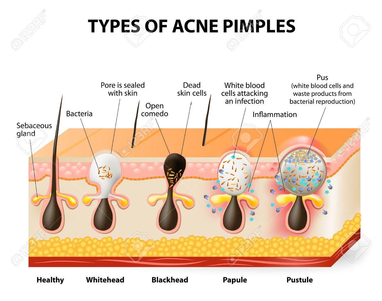 Pimple Skin Diagram Data Wiring Diagrams