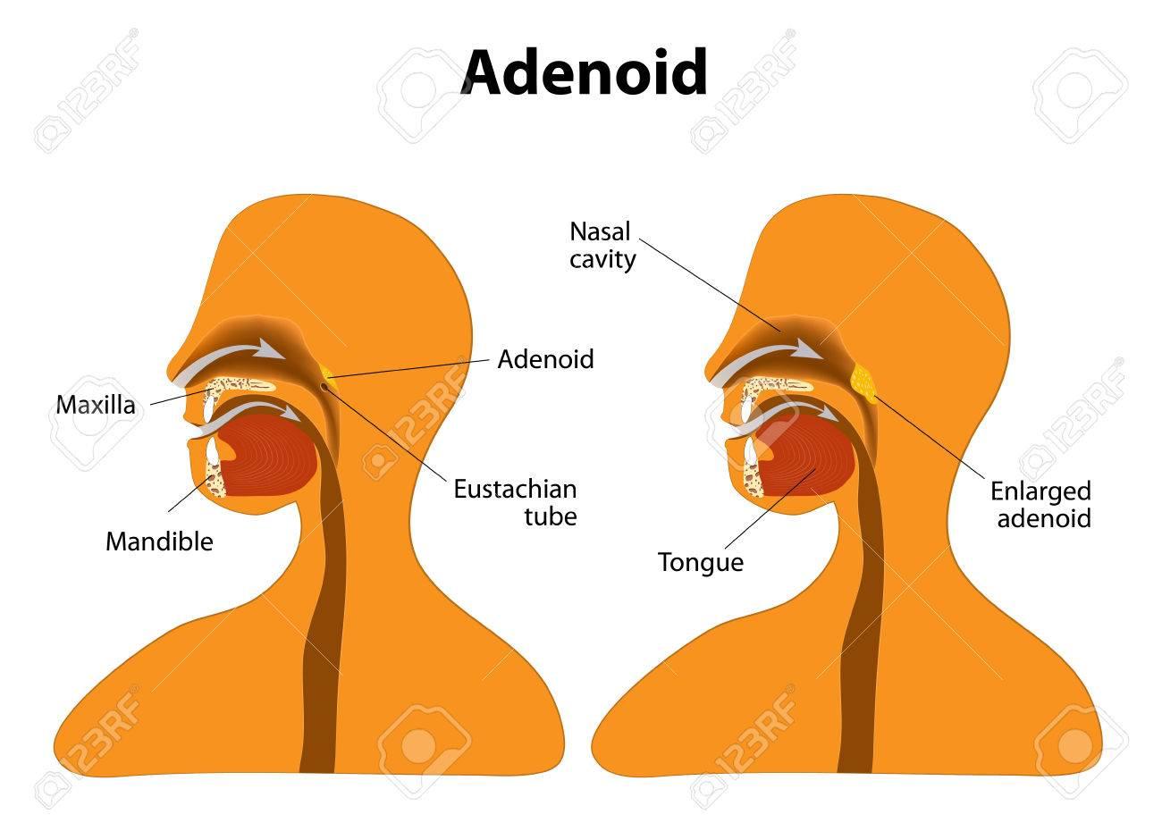 Adenoides. Vista Lateral Que Muestra La Posición De Las Adenoides ...