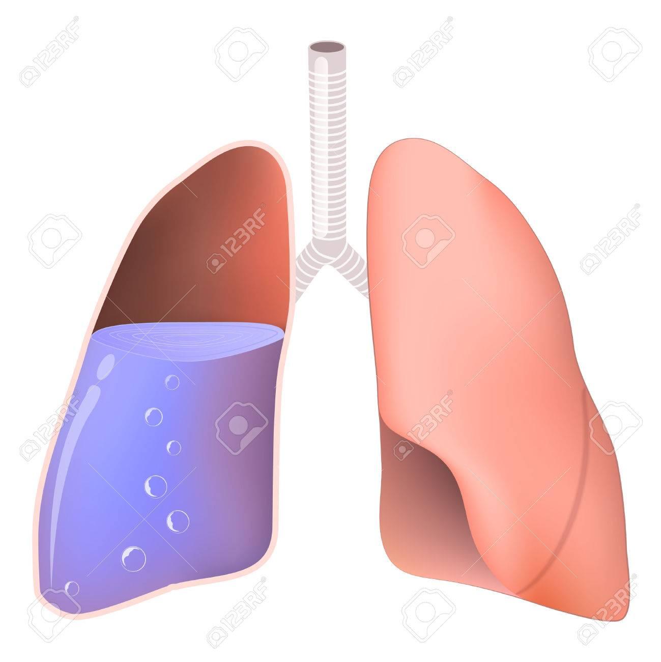 Que pasa cuando se tiene agua en los pulmones