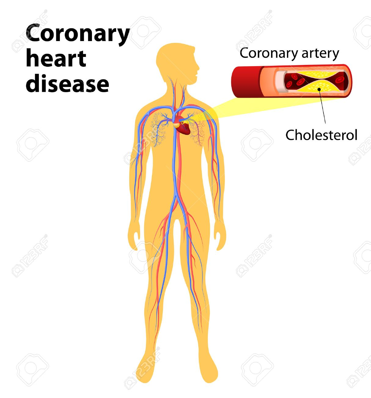 Coronary Heart Disease Is A Condition In Which The Heart\'s Arteries ...