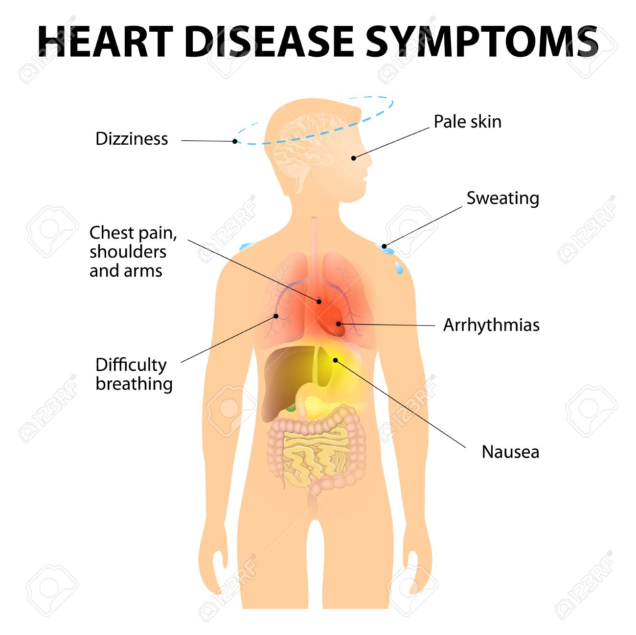 Heart Disease. Signs And Symptoms. Coronary Artery Disease (CAD ...