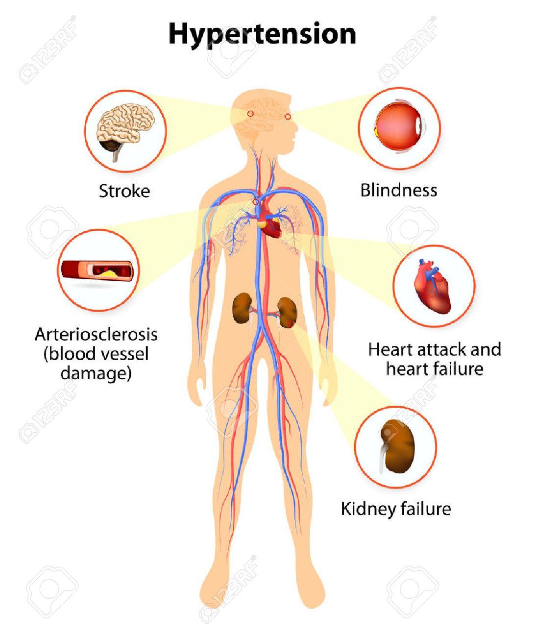 Daño De La Presión Arterial Alta. Hipertensión Aumenta El Riesgo De ...