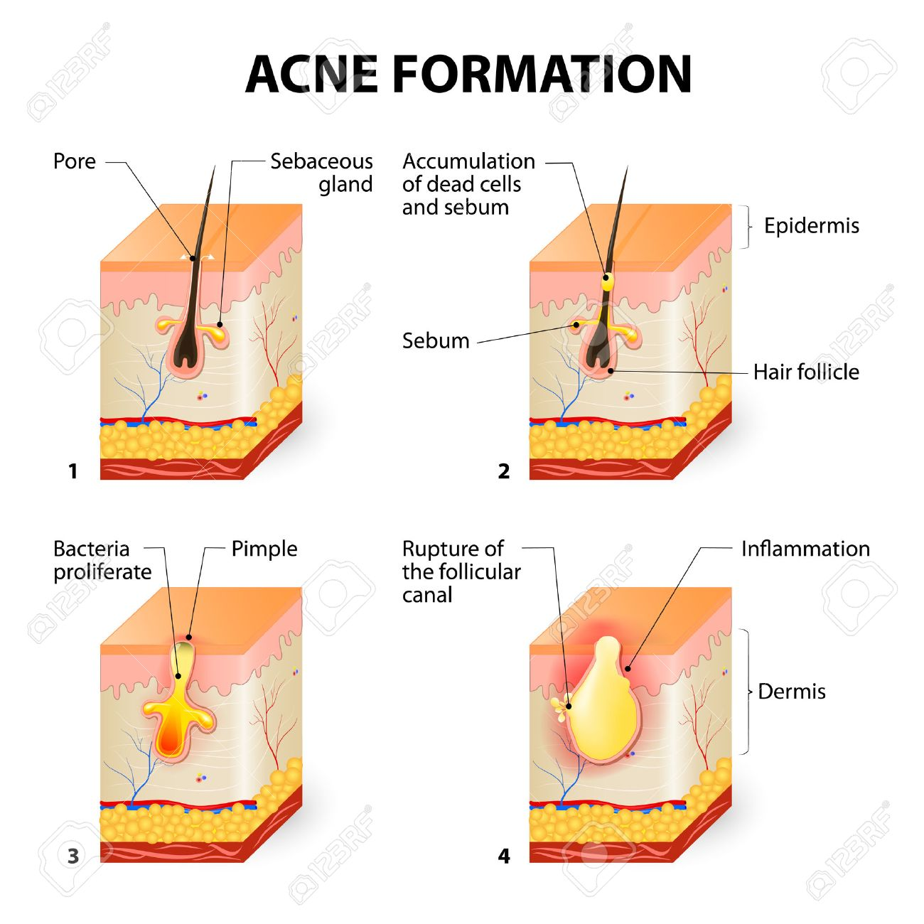 Formation of skin acne or pimple  The sebum in the clogged pore
