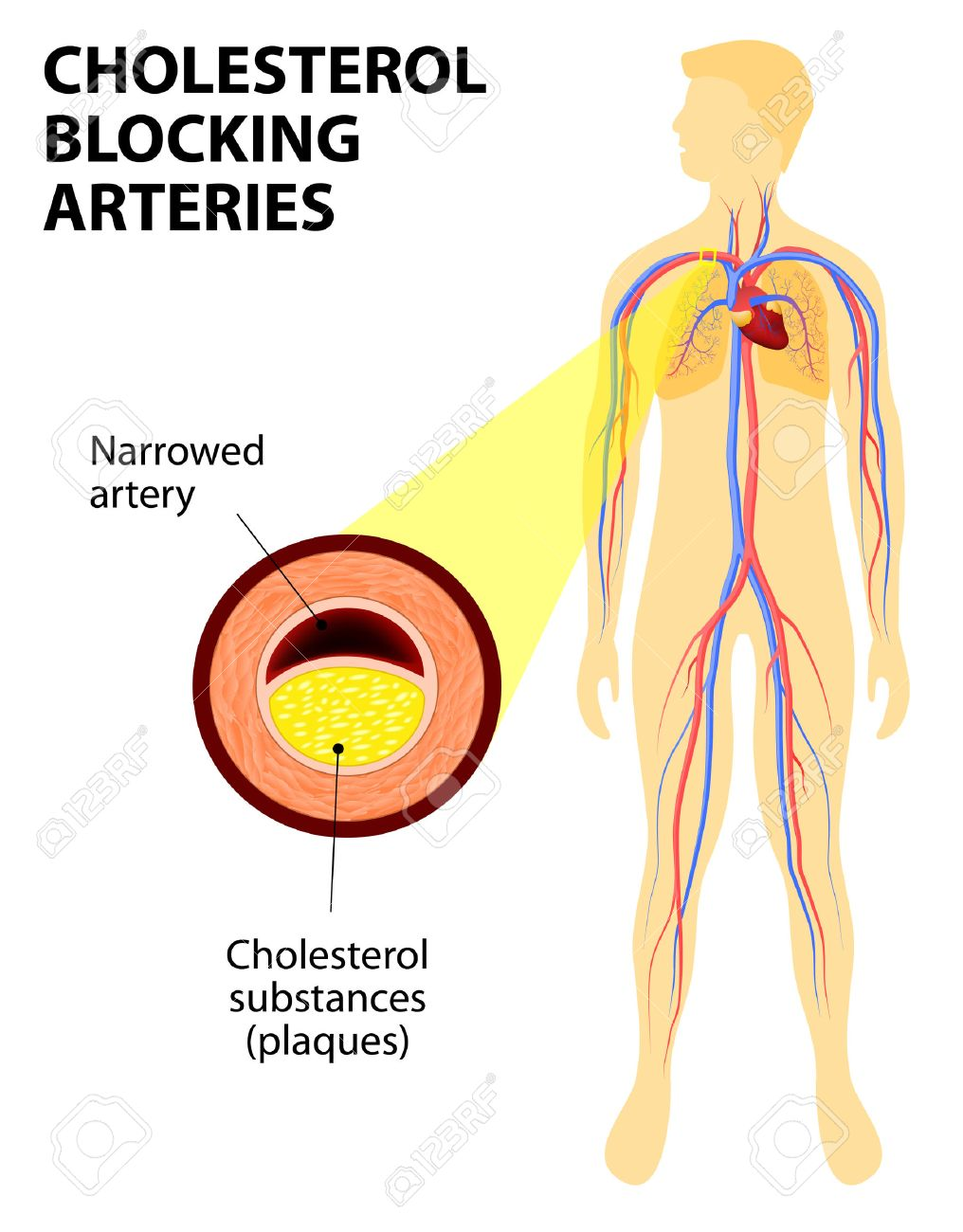 Anatomy Of A Heart Attack Diagram Of A Myocardial Infarction