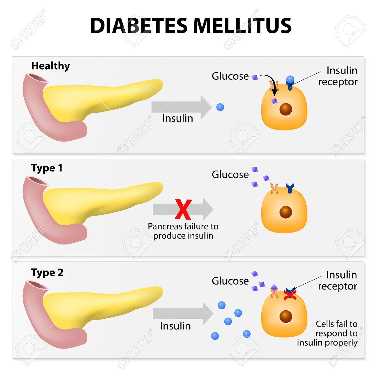 Main Types Of Diabetes Mellitus. Either The Pancreas Not Producing ...
