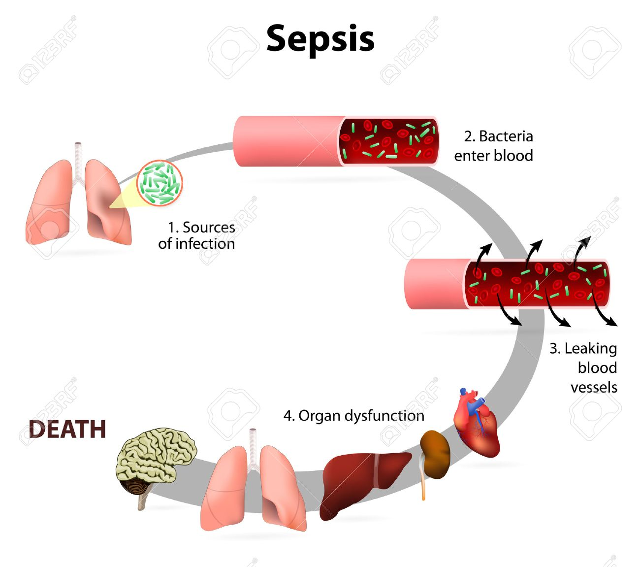 Image result for septicaemia