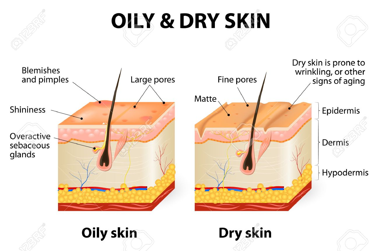 oily & dry skin. different. human skin types and conditions... royalty free  cliparts, vectors, and stock illustration. image 41793414.  123rf.com