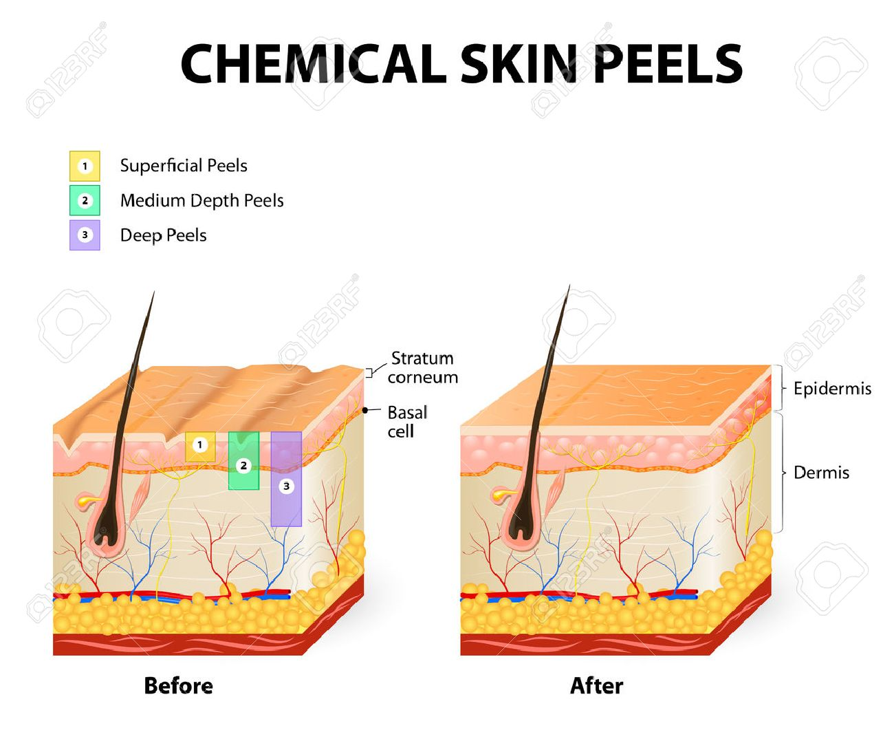 chemical peeling or procedure chemexfoliation  human skin layers stock  vector - 42217827