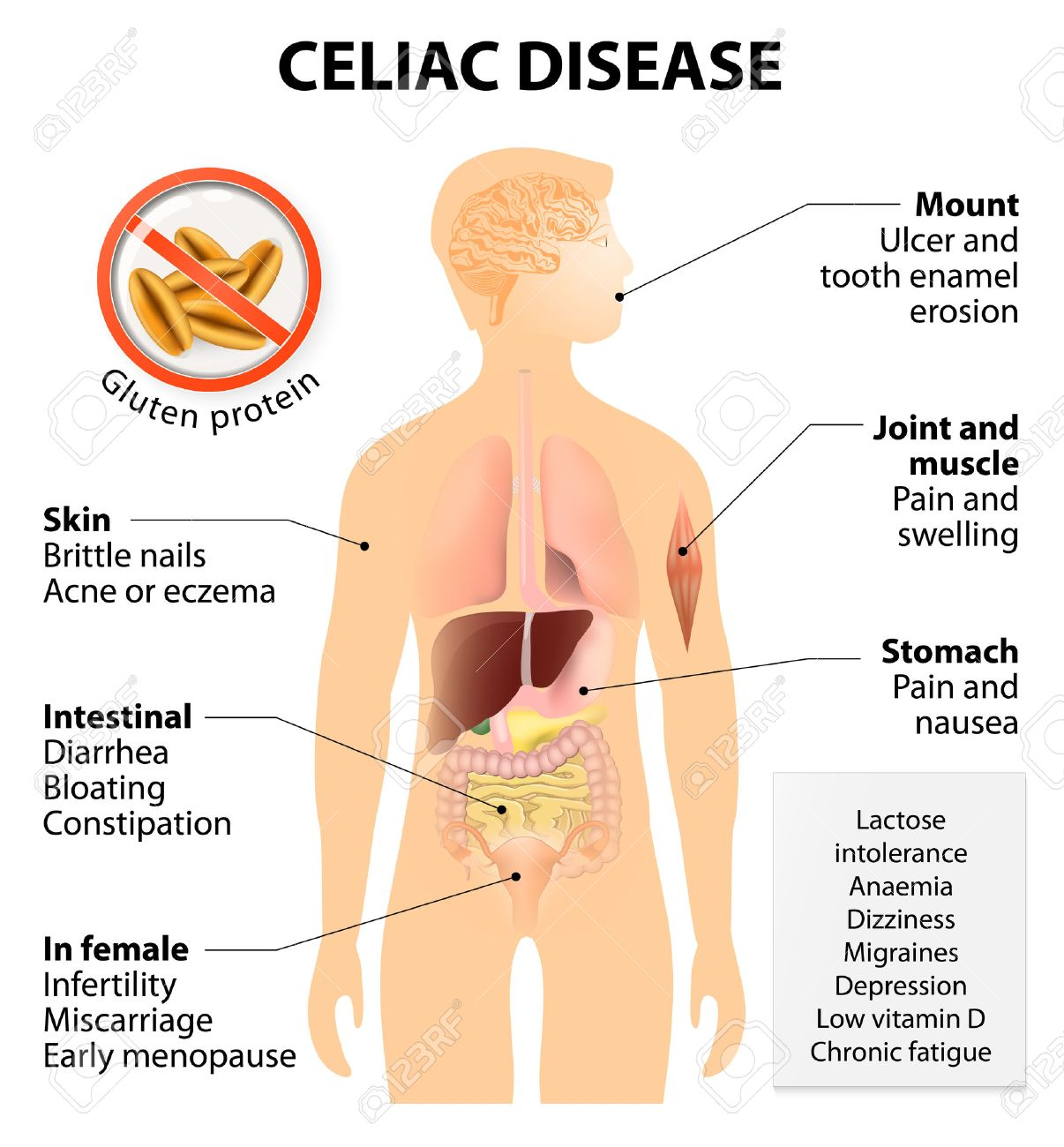 coeliac disease or celiac disease or celiac sprue signs and Celiac Disease Histology