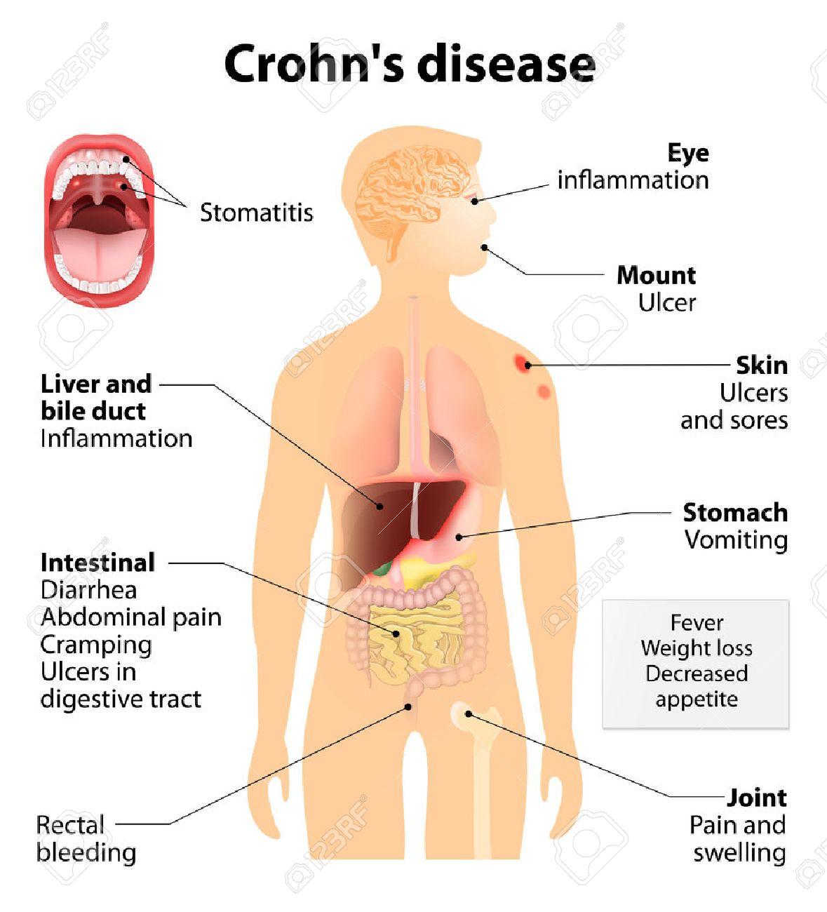 Disease clipart crohn's disease, Disease crohn's disease Transparent FREE  for download on WebStockReview 2020