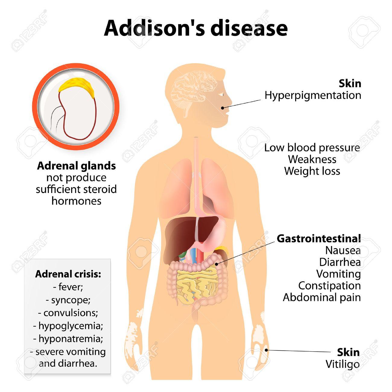 Enfermedad De Addison O Enfermedad De Addison O Insuficiencia ...